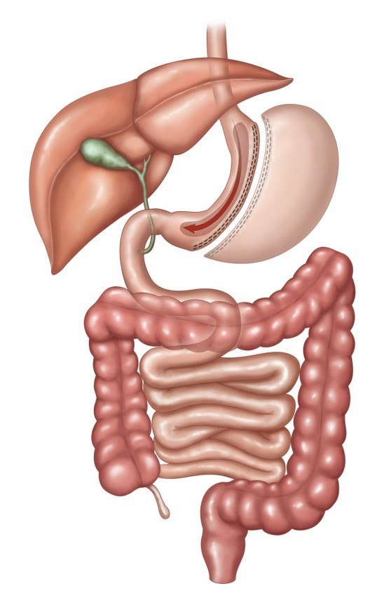 Illustration linking to Sleeve Gastrectomy page